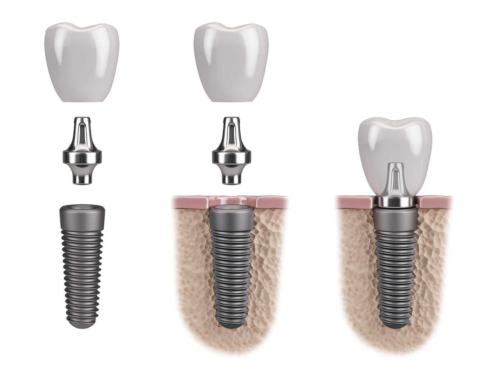 Implantat - Anbringung