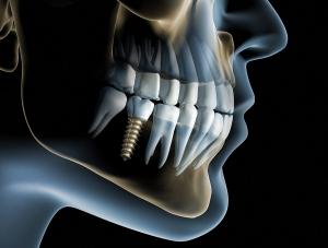 Implantologie - X-Ray Implantat