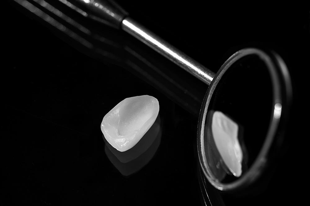Ästhetische Zahnheilkunde - Veneers
