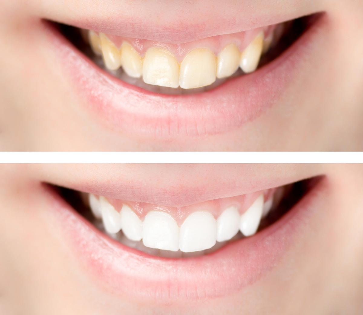 Zahnaufhellung - Vergleich: Vorher/Nachher